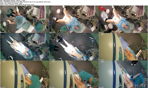 hidden camera in gynecological